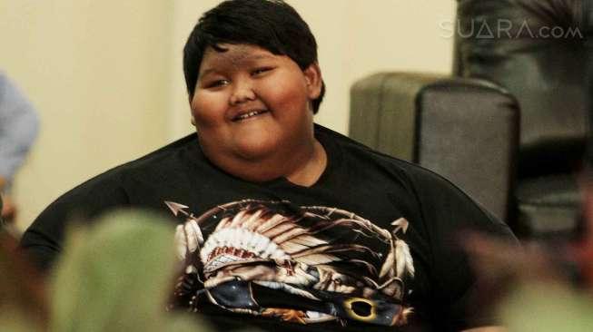 Menderita Obesitas, Bocah 14 Tahun di Kabupaten Touna Berbobot 125 Kg